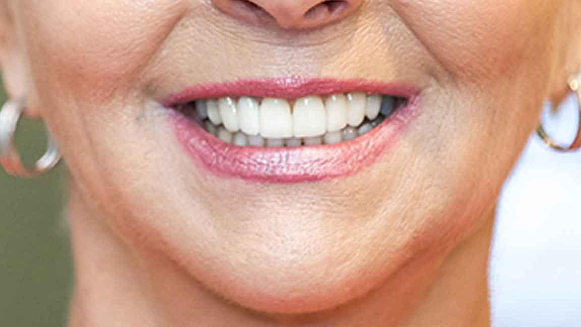 Cosmetic Dentistry in Leesburg